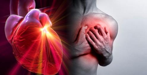 Infarto Corazón