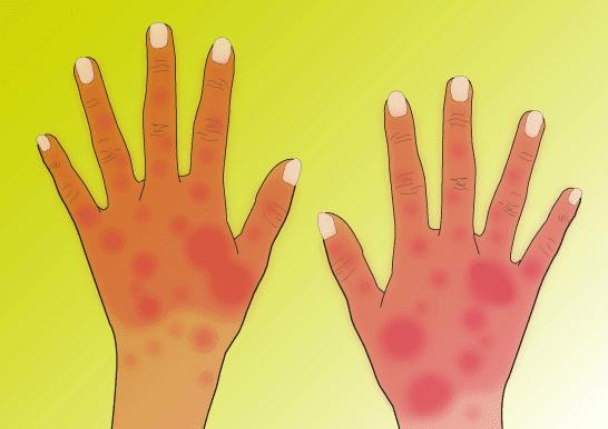 witte schilfers huid