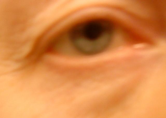 hemorrojdsalva under ögonen