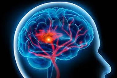 図:脳梗塞再発
