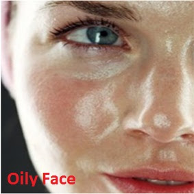 Tips  How to Overcome Oily Face Naturally