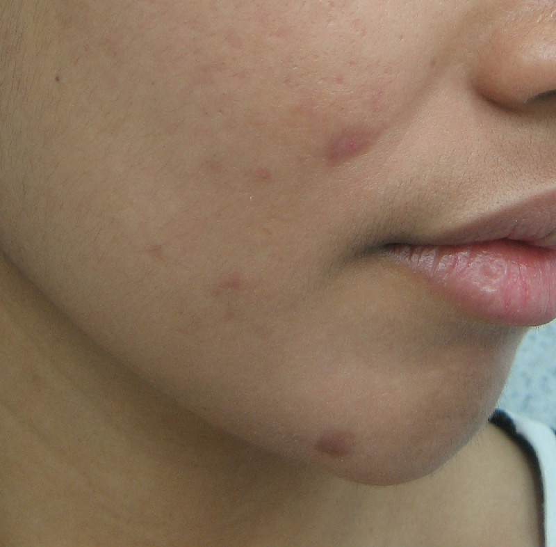 Adult acne face