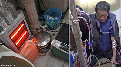 Pria China Berhasil Buat Alat Cuci Darah Sendiri Untuk Bertahan Hidup