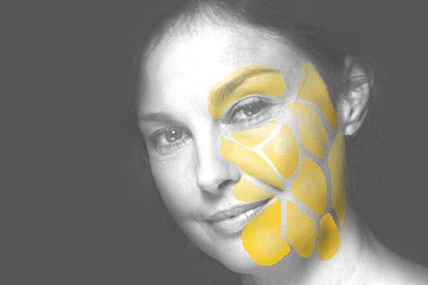 臉部脂肪分布不均以塑顏電波(Thermage)來改善