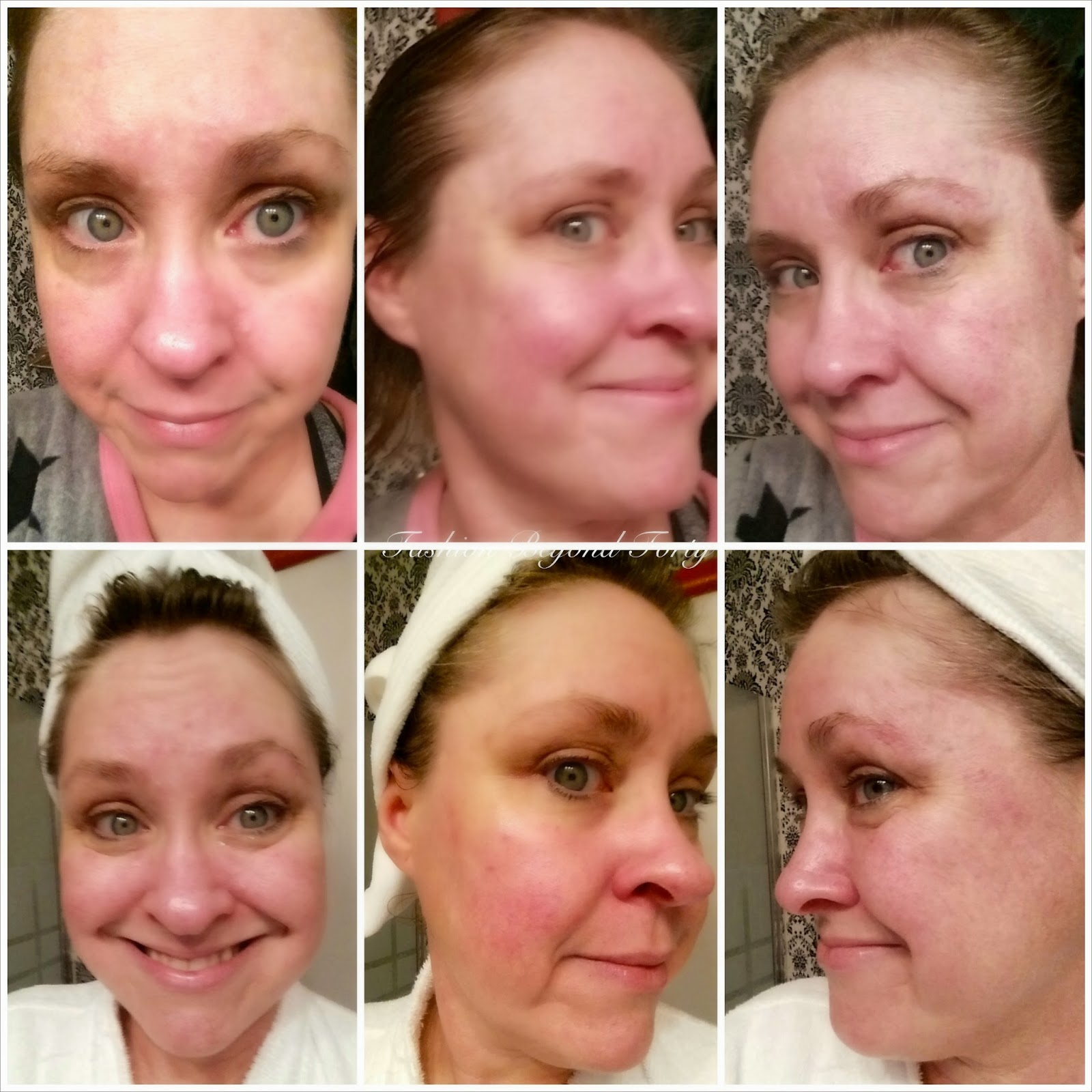 Day Three and Four with Resurrect Anti Aging Moisturizer Matrixyl 3000®