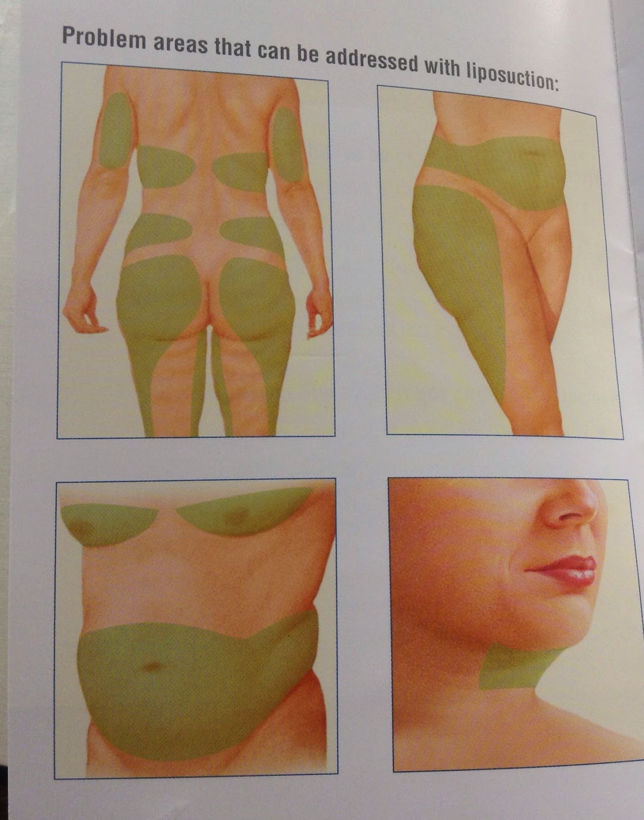 Triplets twins one oh my full body liposuction my journey liposuction removal of fat is also used frequently in conjunction with a tummy tuck operation which i already did and in some breast reduction solutioingenieria Image collections