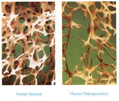 hueso osteoporosis: