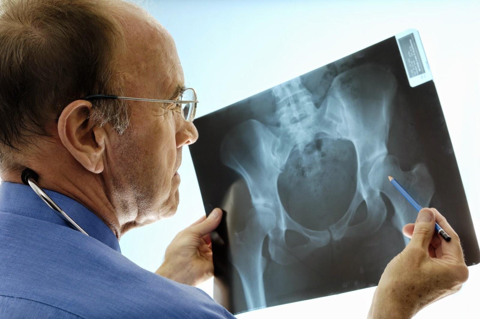 Pruebas y Exámenes comprobar osteoporosis