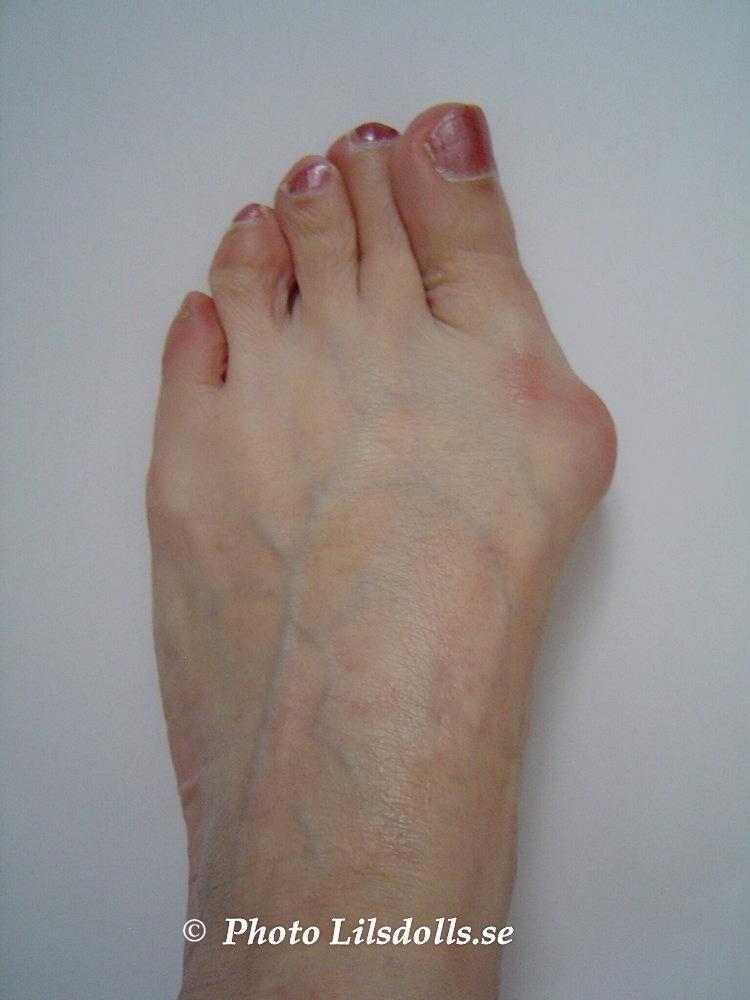dålig känsel i fötterna