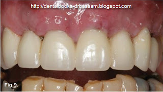 Dental Books: May 2013