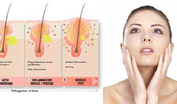 Proactiv Solution: How Acne Form and How to Stop It!