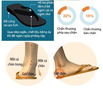 Tác hại của dép xỏ ngón có thể gây đau chân