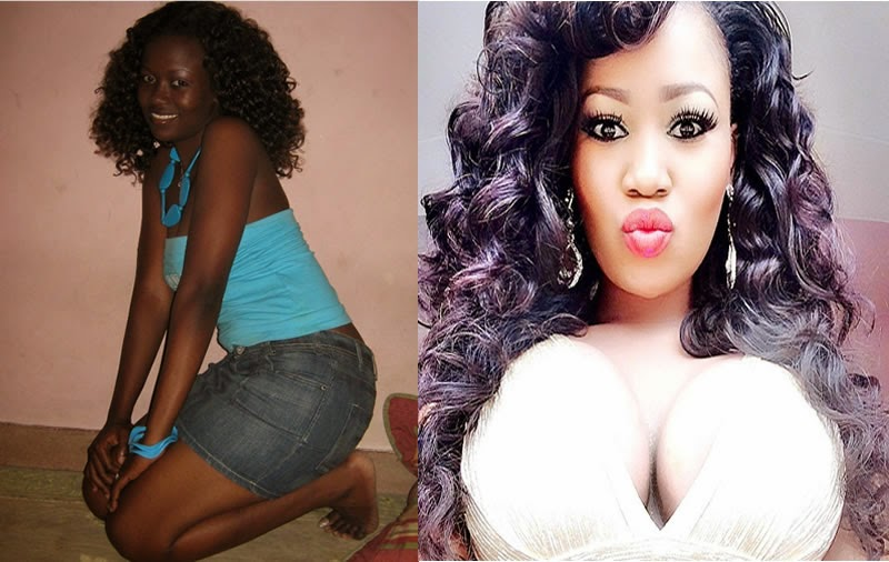 Photos Of Vera Sidika Before And After Breast Implant And