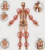 Obat Untuk Penyakit Infeksi Radang Sendi