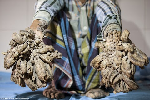 Bangladeshi man suffers rare condition that causes 'roots' to grow from his limbs (photos)