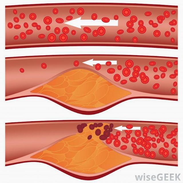 rendah kolestrol