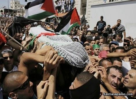 Mohamed Abu Khudair burn in Palestin