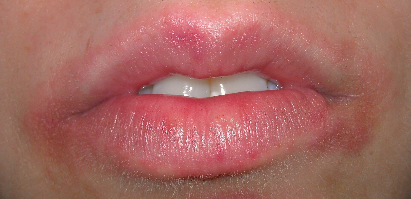 Help Having A Cold Sore Redness Around My Lips