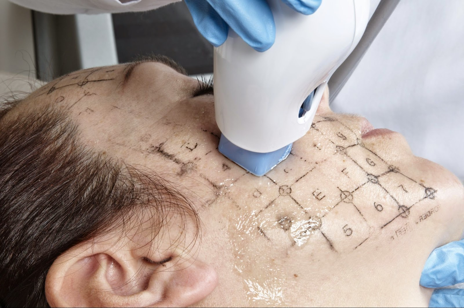 Image result for Thermage Comfort Pulse Technology (CPT) device that applied Radiofrequeny energy to your skin