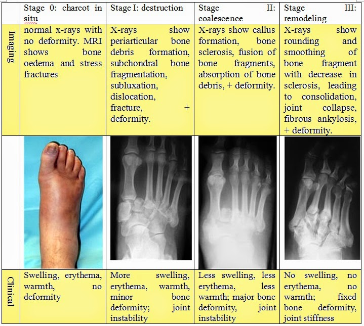 Charcot Arthropathy Stages