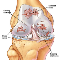 Pengobatan Tradisional Penyakit Osteoarthritis