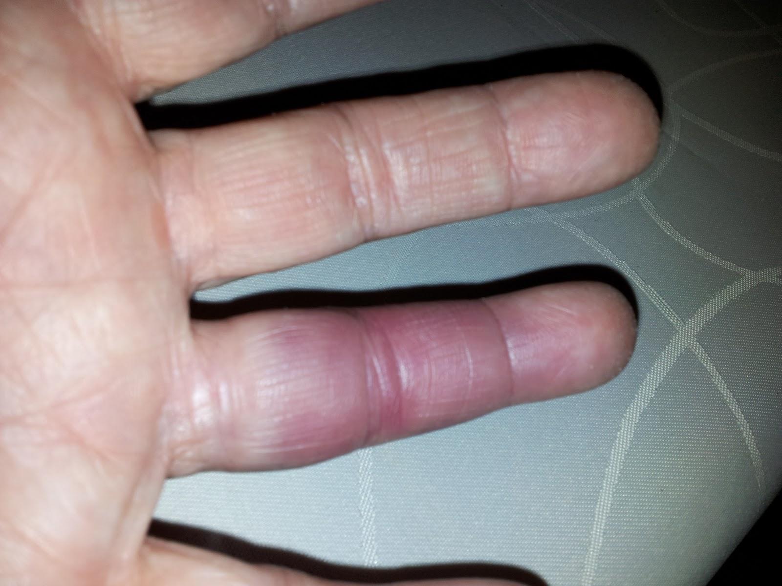 sprucket blodkärl i fingret