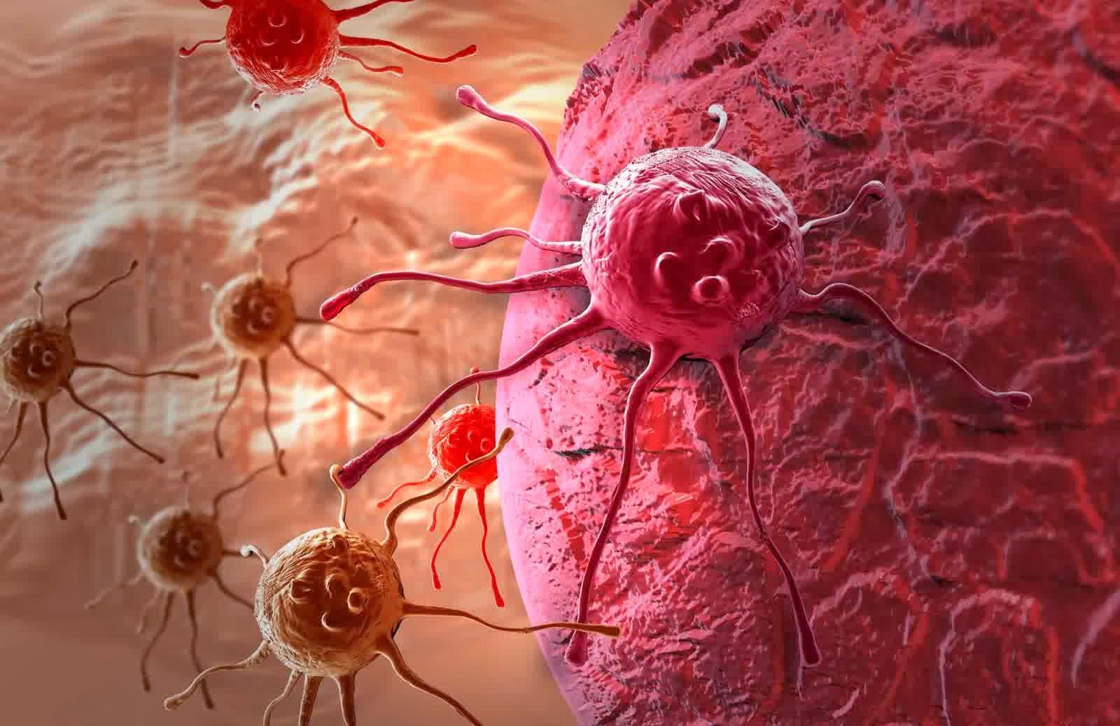 Novel tecnica di chirurgia robot-assistita migliora la rimozione dei tumori del cancro del rene piccolo