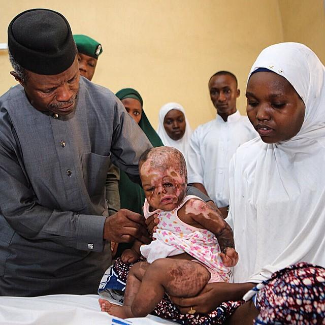 baby boko haram victim