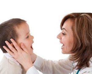 Obat Sariawan Untuk Anak Bayi