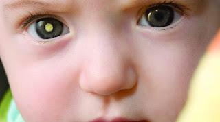 5 Penyebab Kerusakan Pada Mata Anak