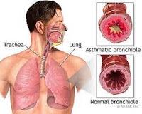 gejala penyebab penyakit asma