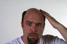 male baldness pattern found