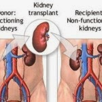 Facts & Info about Kidney Transplantation - Tips on Healthy Kidney