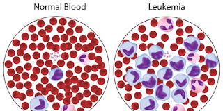 Cara Mengobati Kanker Darah Leukimia
