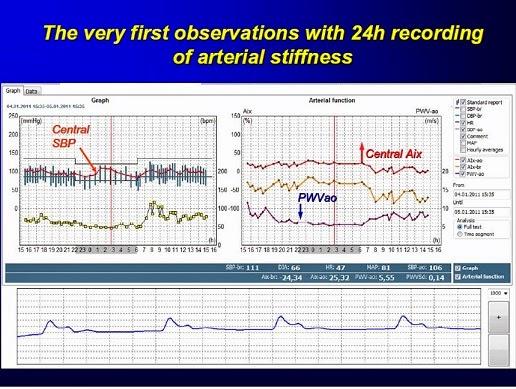 ワイヤレス ポータブル 動脈解析測定計