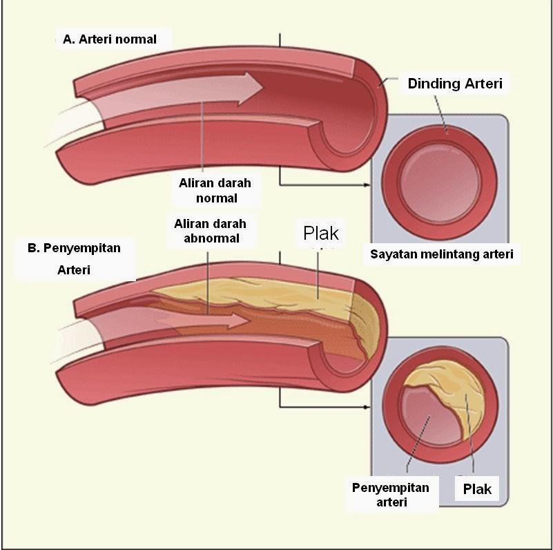 Obat Kolesterol Herbal