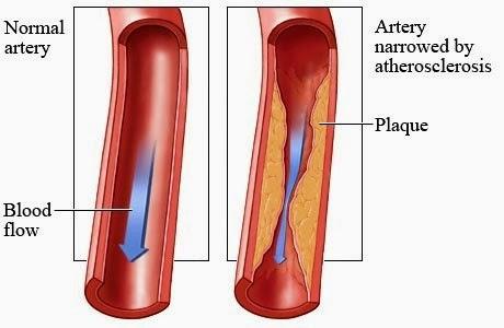 Чистый кровеносный сосуд и сосуд с холестерином
