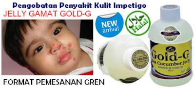 http://www.ramuanalami.co.id/2015/09/pengobatan-penyakit-kulit-impetigo.html
