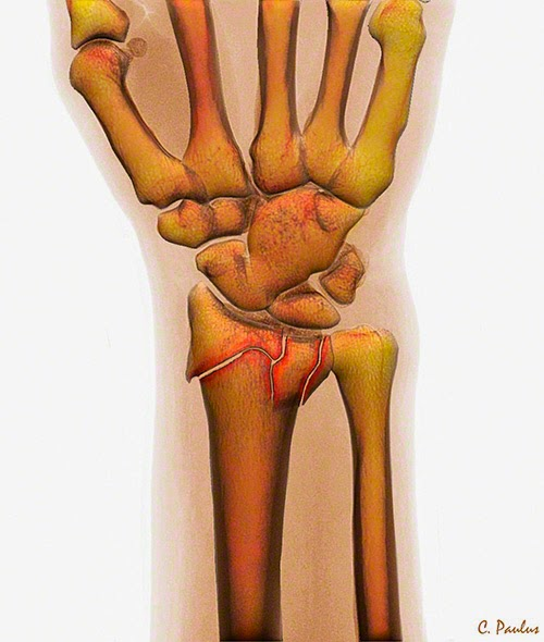 A Distal Radius Fracture (Wrist Fracture) on 3-D Color X-Ray