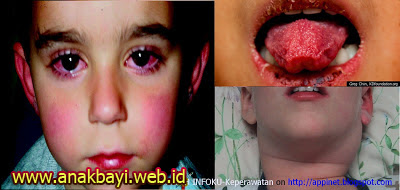 Obat Penyakit Kawasaki Disease pada Anak Bayi