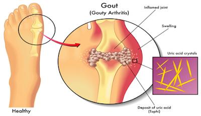 Gout High Uric Acid