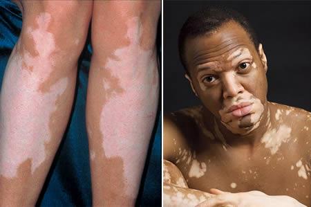 skin problems diabetes