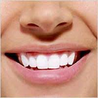 شائعات وأوهام حول صحة الفم والأسنان مع الدلائل العلمية
