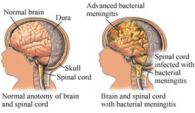 Obat Radang Selaput Otak Untuk Anak