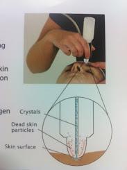 Skin Base Microdermabrasion System