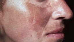 Treat Sun Spots and Melasma at Anand Medical Spa