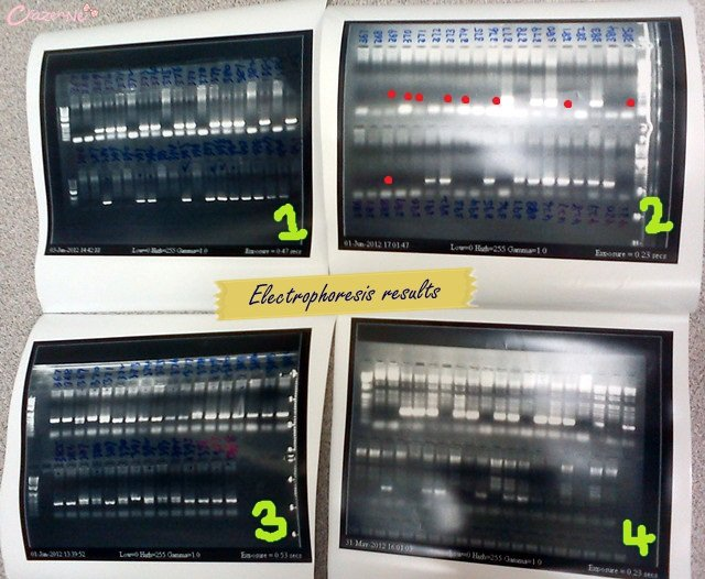 electrophoresis dna result