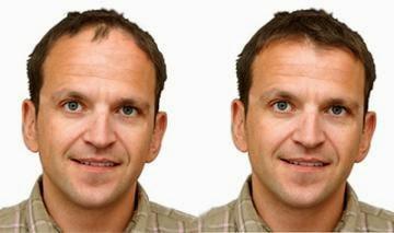 Remedios caseros para la calvicie masculina