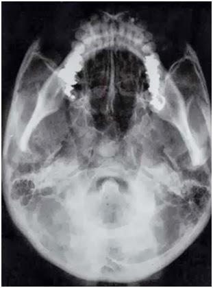 radiologia de cara y cuello  Radiologia de cara y cuello