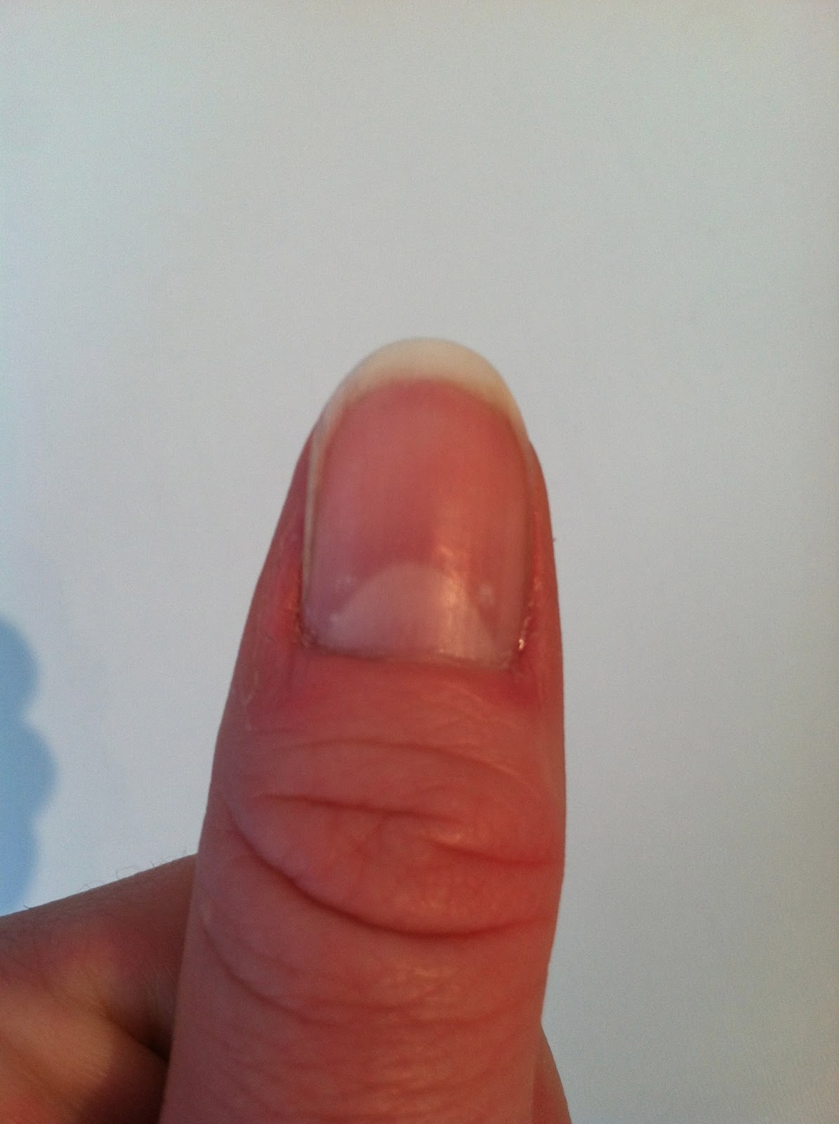 how to stop skin picking cuticles